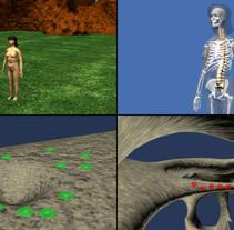Osteoporosis CGI 3D año 1999. Um projeto de 3D, Animação e Vídeo de Ivan C         - 31.12.2006