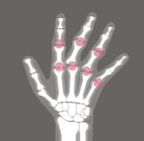 Revista informativa sobre la  Artritis reumatoide. Un proyecto de Diseño, Ilustración, Diseño editorial, Diseño gráfico e Ilustración vectorial de Lidia Lobato - 13-01-2017